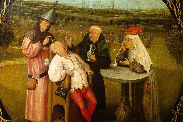The Seven Worst Surgeries before Modern Times