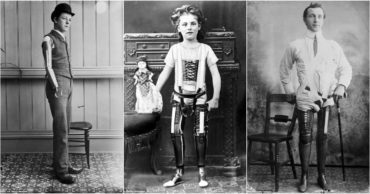 Vintage Photographs of Artificial Limbs will Change the Way You See them Forever