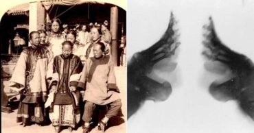 Why the Excruciating Process of Bound Feet Was Considered Extremely Erotic In China