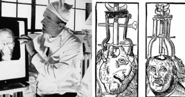These 10 Abhorrent Medical Practices from History Will Make You Glad You Live in the 21st Century