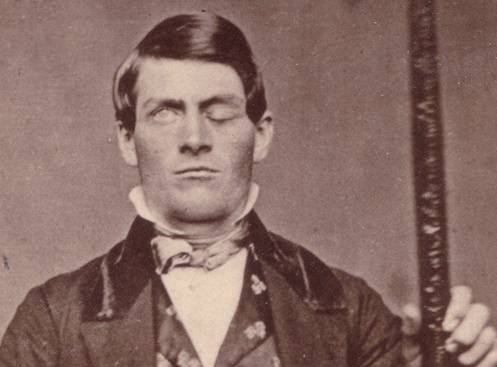How This Man Survived Having A Metal Bar Shot Through His Skull… And Changed Medicine Forever