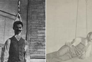 20 Medical Researchers Who Performed Shocking Experiments On Themselves
